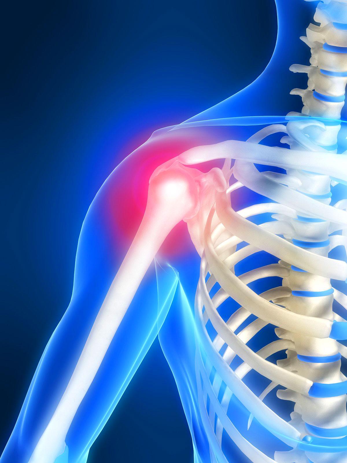 Как лечат остеохондроз шейного 48