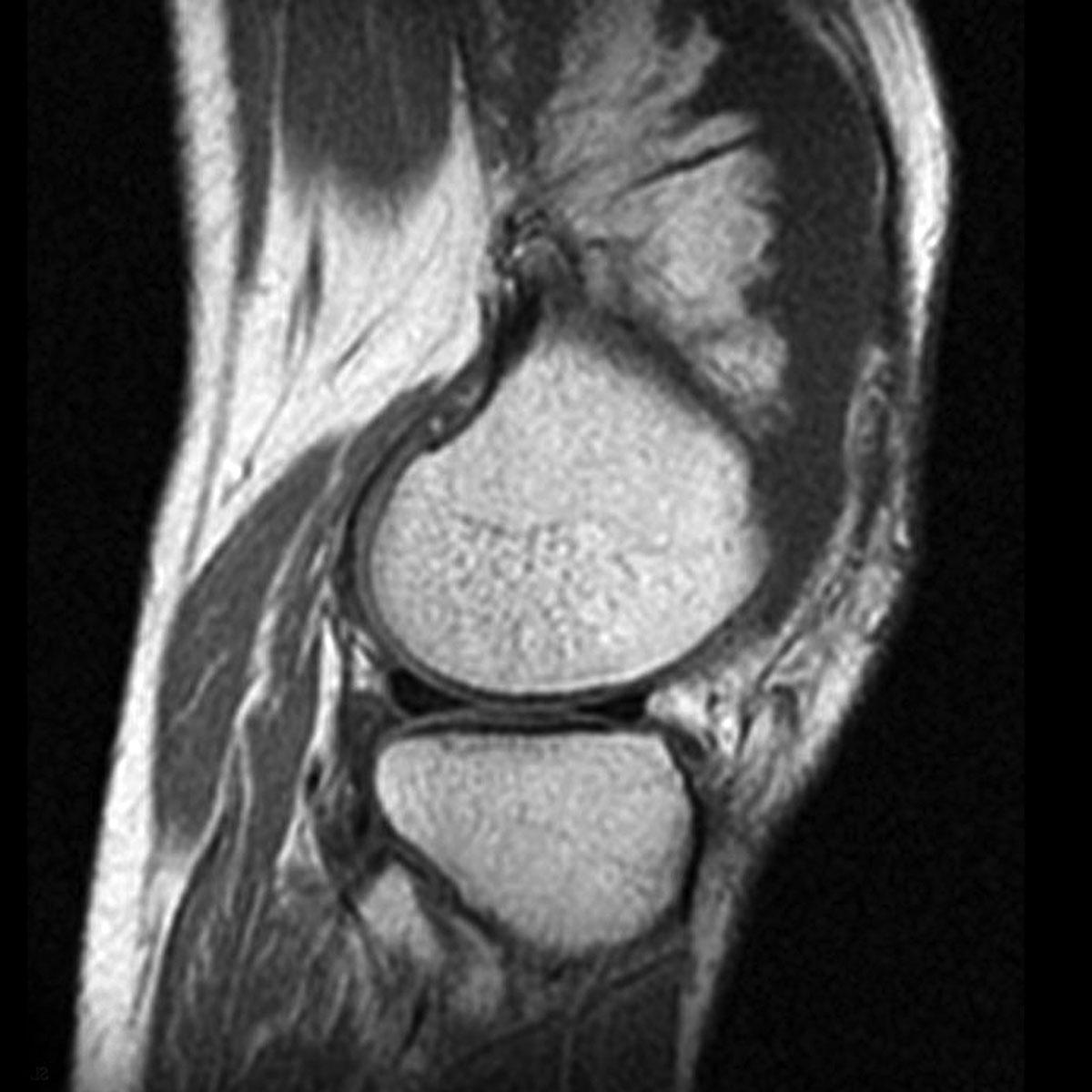 Снимок коленного сустава