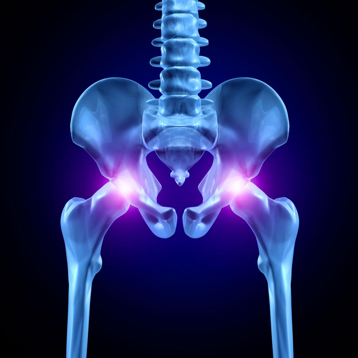 Мрт или кт тазобедренных суставов что лучше остеоортроз коленного сустава