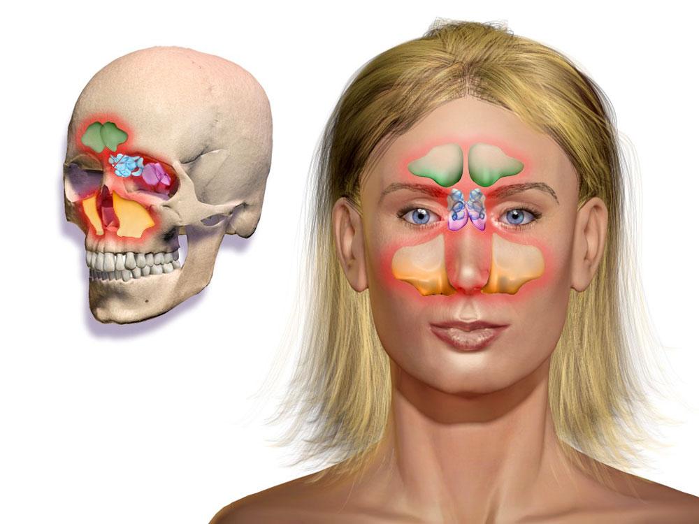 фронтальные пазухи носа