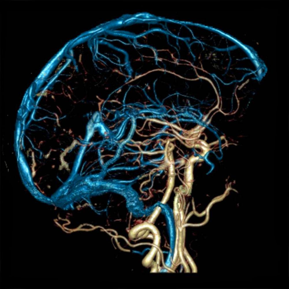 диагностические возможности мрт сосудов мозга