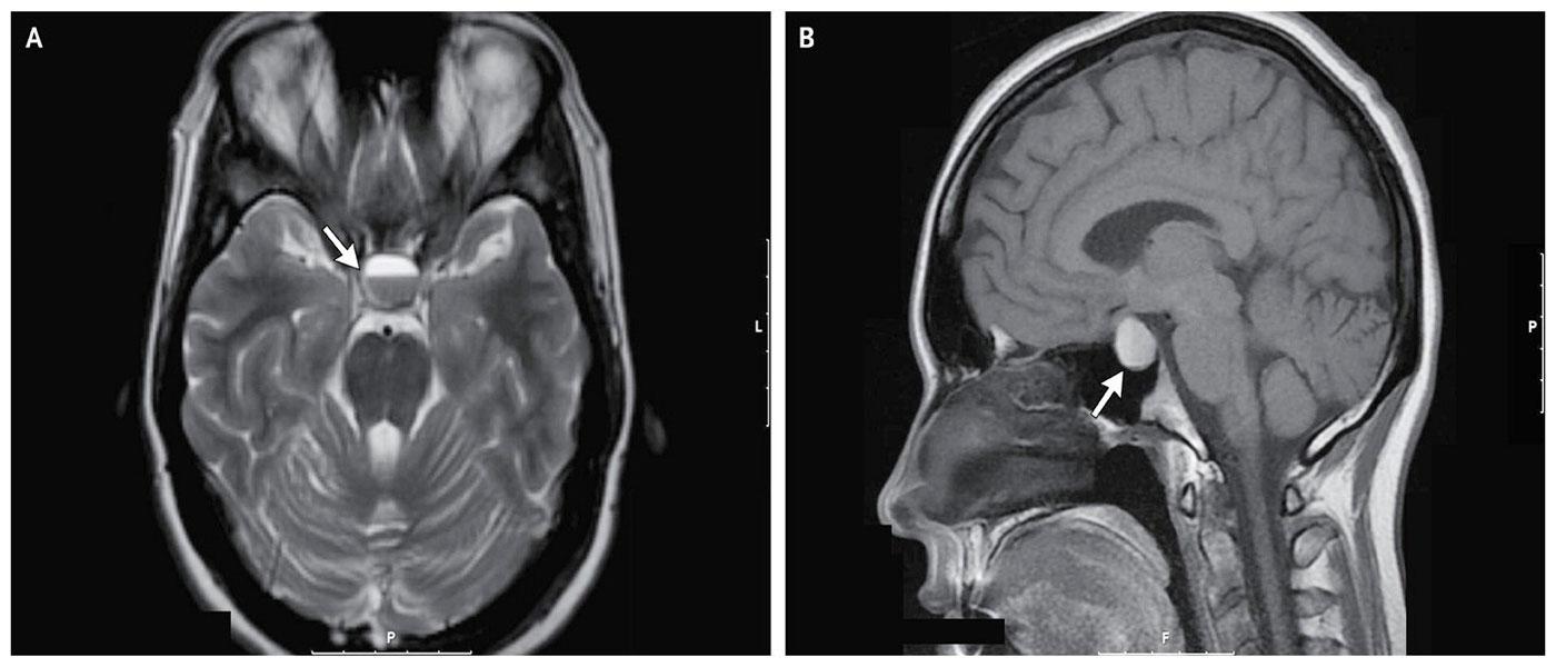Опухоль Мозга Ложная фото