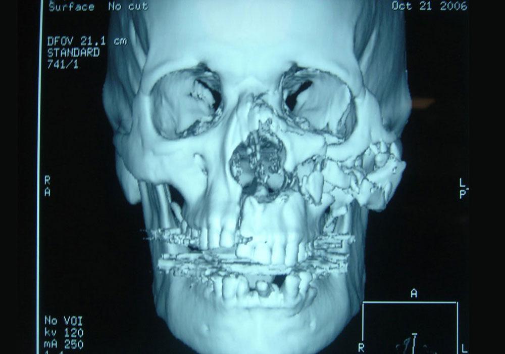 Магнитно-резонансная томография височно челюстного сустава г.москва таблетки для лечения деформирующего артроза коленного сустава