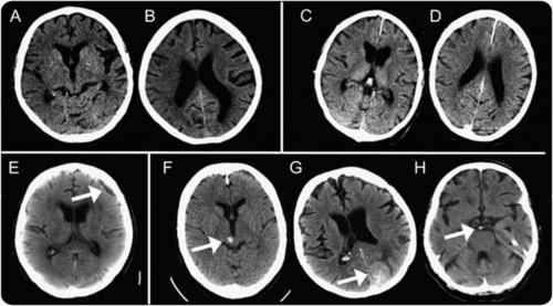 срезы снимка головного мозга