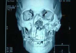3d изображение челюсти и черепа