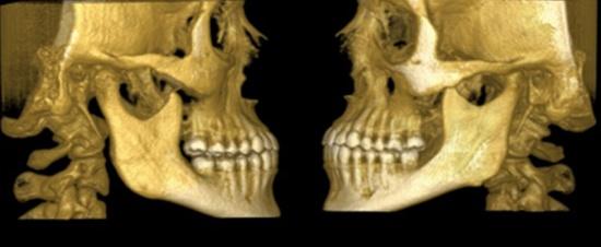 трехмерный снимок челюстно-лицевого сустава