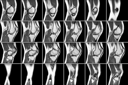 послойная томография колена
