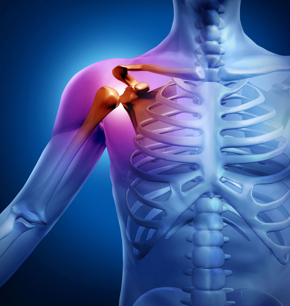 Где сделать кт плечевого сустава блокада в сустав плеча