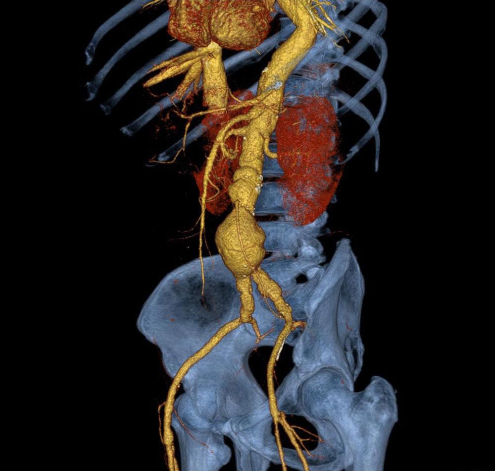 Аневризма брюшной аорты фото