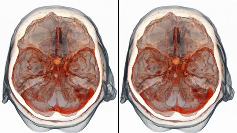 Как сделать томограмму головного мозга