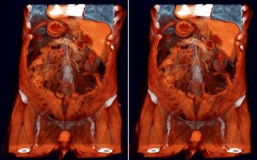 томография желудка