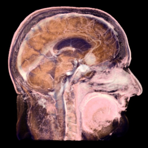 вид головного мозга на томографе