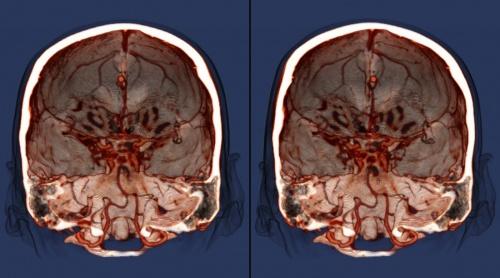 результат МРТ мозга головы