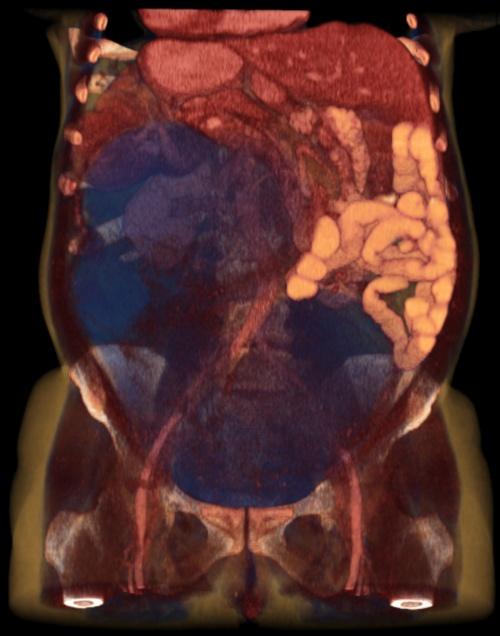 Мрт желудочно кишечного тракта цена