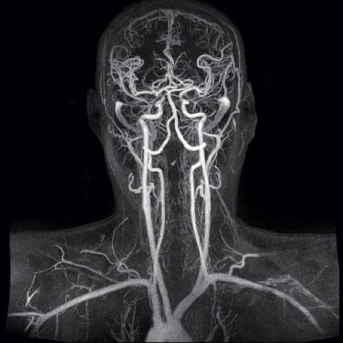 Узи головного мозга и мрт головного мозга отличие thumbnail