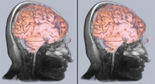 подготовиться к томографии головы