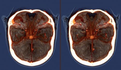 снимок мозга головы
