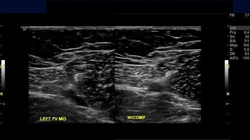 снимок диагностики нижних конечностей