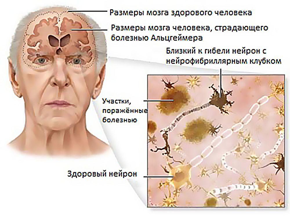 Симптомы связанные с заболеваниями головного мозга