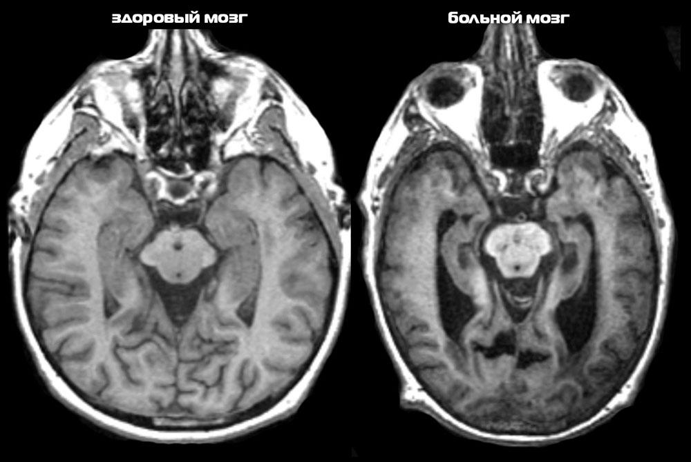 Картинки по запросу мрт болезнь альцгеймера