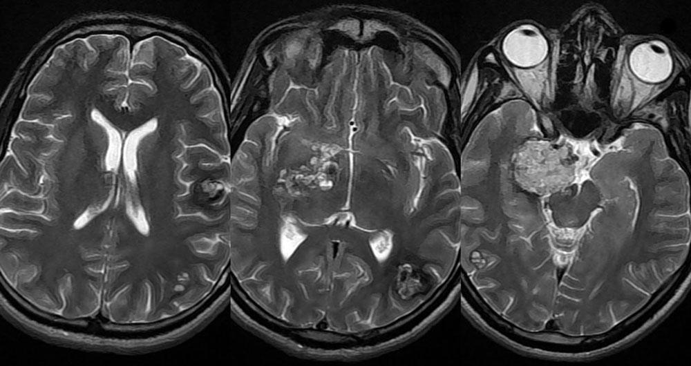 МРТ при очаговых поражения головного мозга дистрофического ...